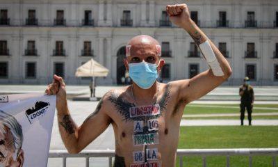 Chile: Refieren a Fiscalía a constituyente que se hizo pasar por pacientte de cáncer